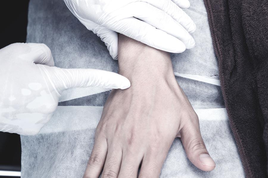 手の甲 2
