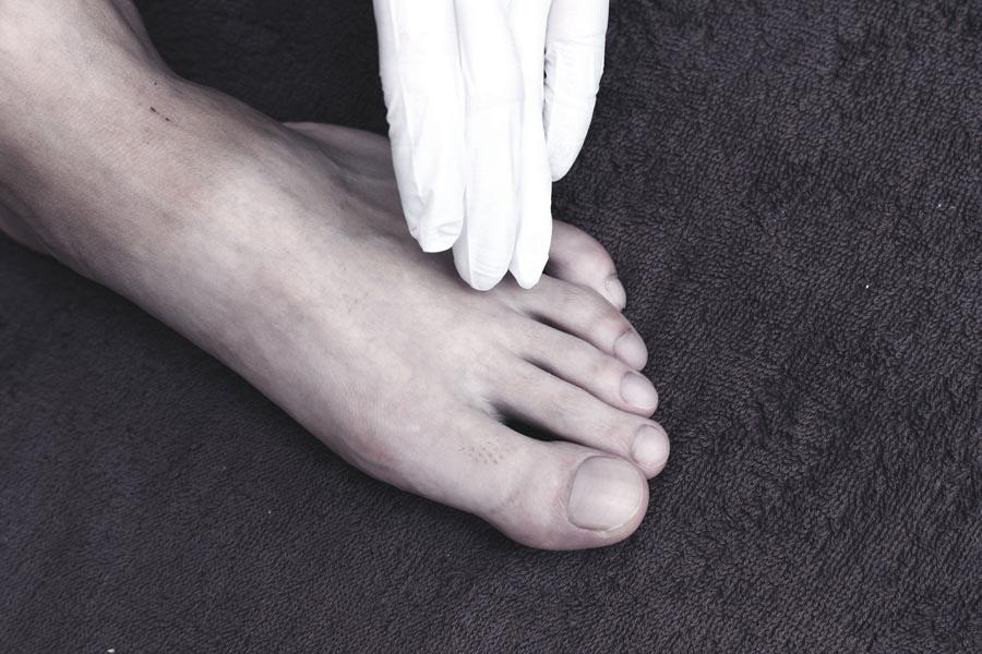 足の甲 2