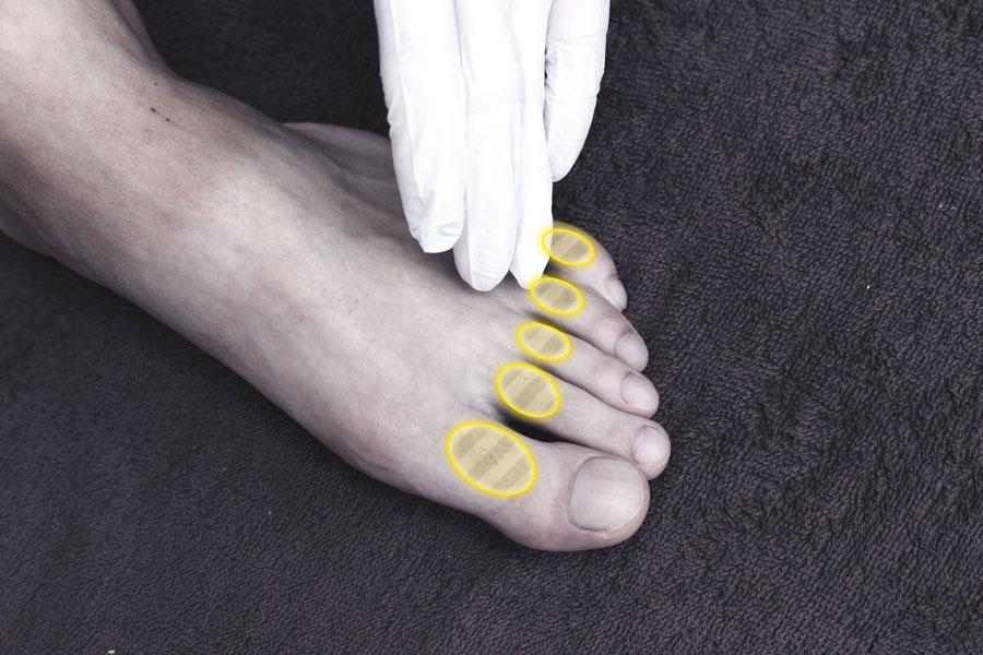足の指 1